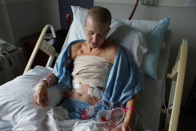 Me -- 5 Days post bilateral mastectomy and complete ALND (Axillary Lymph Node Dissection)
