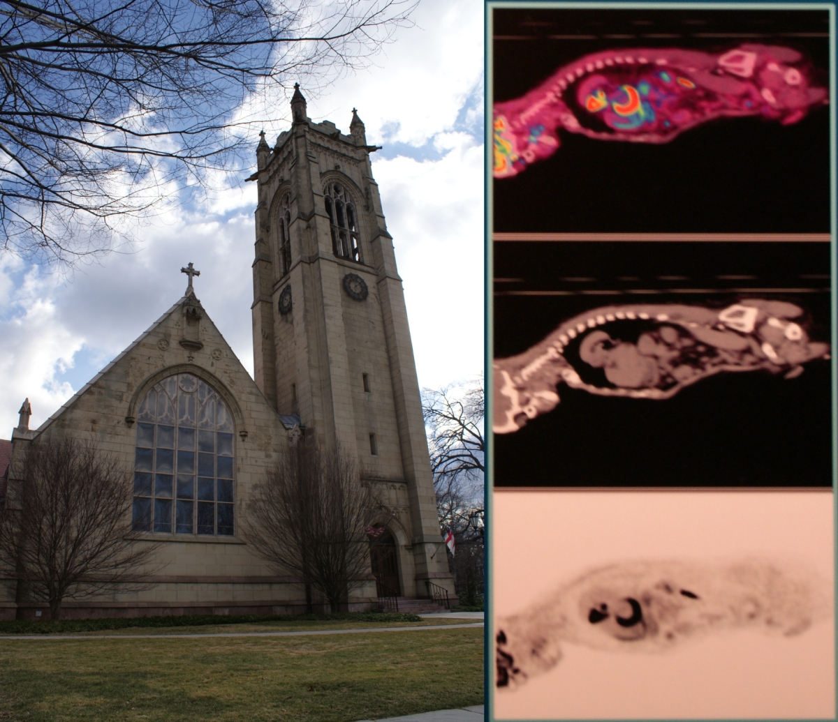 cancerinmythirties.wordpress.com breast cancer thirties 30s 30's faith science church cat scan belief death